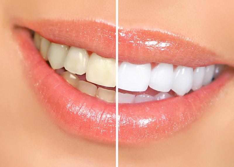 Teeth Whitening  Monroe, WI